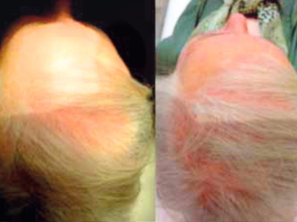 Estudio: Serenoa Repens oral y tópica (Hairgen) en el tratamiento de la alopecia androgenética